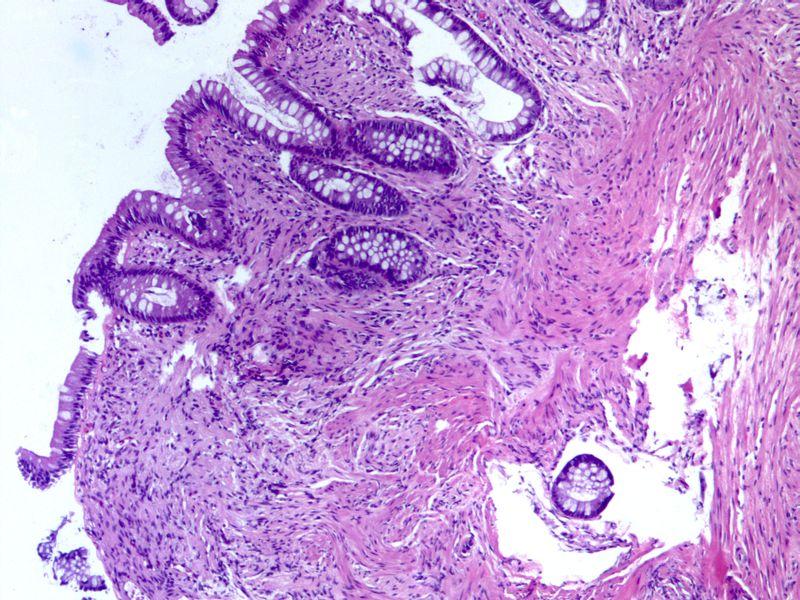 Rectal polyp schwannoma1