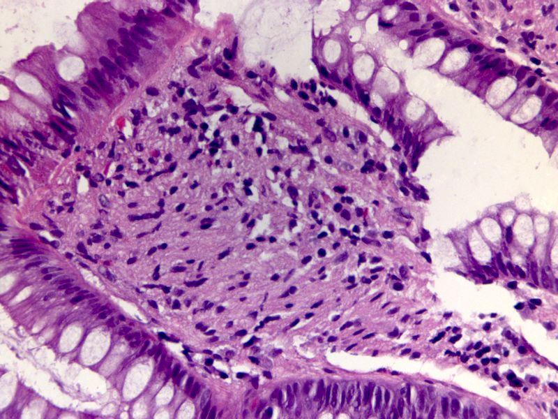 Rectal polyp schwannoma2